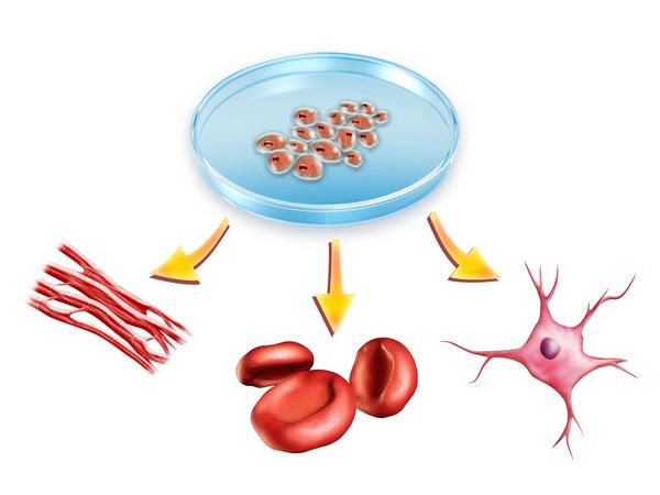 Celleterapi og diabetes